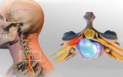 Lồi đĩa đệm cột sống cổ: Nguyên nhân, dấu hiệu, biện pháp điều trị