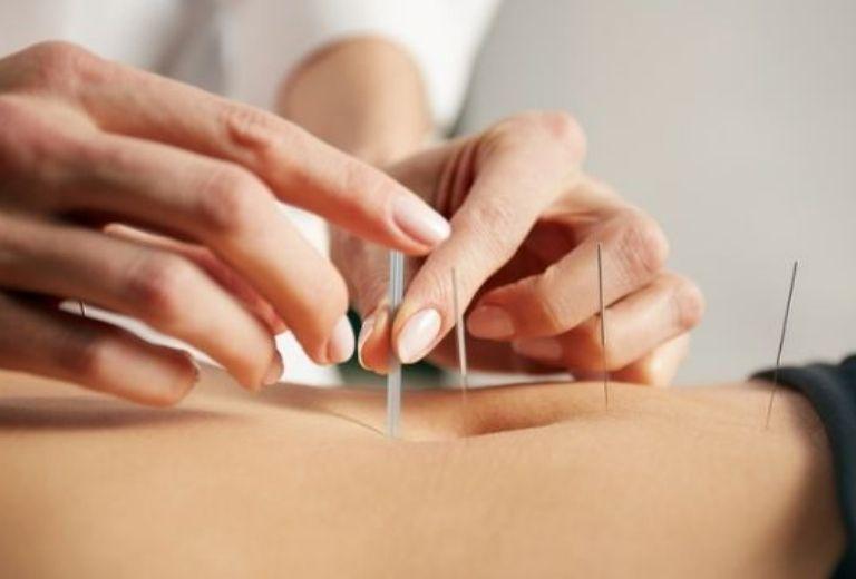 Chữa đau dây thần kinh liên sườn bằng châm cứu qua việc điện châm tại các huyệt vị