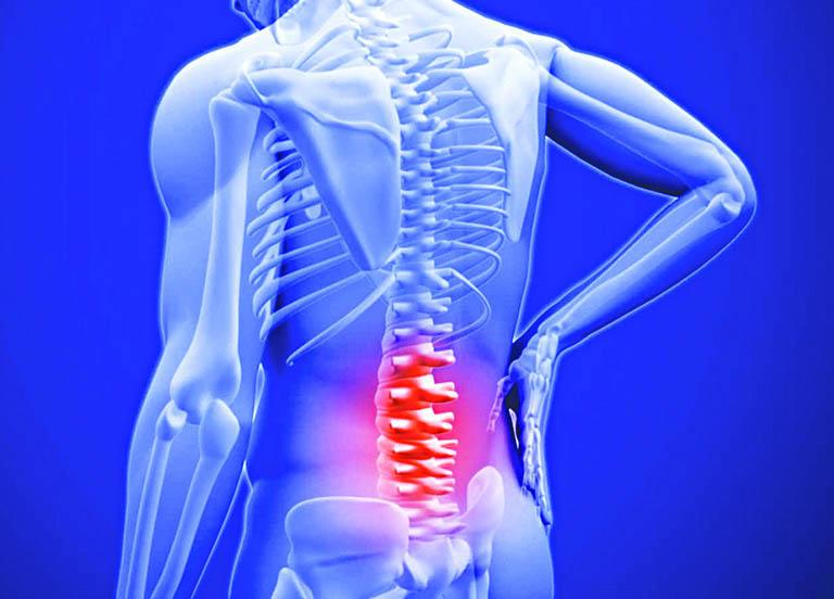 Đau dây thần kinh liên sườn gây nhiều triệu chứng khó chịu