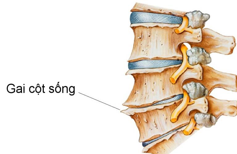 Các mỏm gai cọ xát vào xương hoặc mô mềm là nguyên nhân gây ra những cơn đau