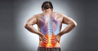 Các bệnh lý cột sống - thắt lưng là nguyên nhân chính dẫn tới các cơn đau kéo dài