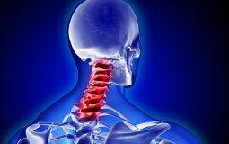Đau vai gáy gây nhiều triệu chứng khó chịu, ảnh hưởng đến cuộc sống sinh hoạt