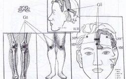 Diện chẩn chữa đau khớp gối là gì và có hiệu quả không?