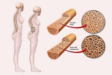 Điều trị loãng xương hiệu quả