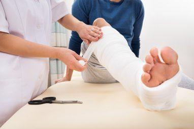 Bó bột là một hình thức cố định phần xương gãy