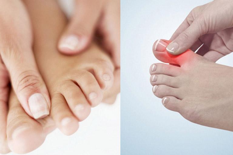 Thường xuyên đau ngón tay, ngón chân do bệnh thoái hóa khớp