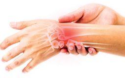Đau cổ tay, tê bì bàn tay do Hội chứng ống cổ tay