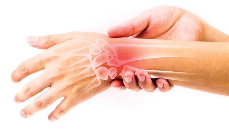 Đau các khớp ngón tay do Hội chứng ống cổ tay