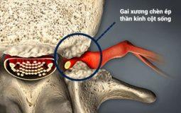 Gai cột sống chèn dây thần kinh là bệnh gì? Phải chữa làm sao?