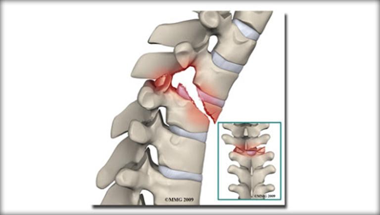 Gãy xương cột sống lưng