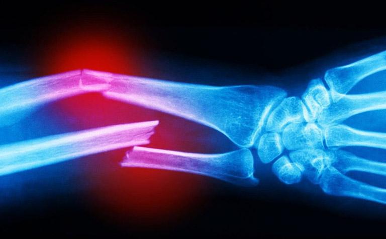 Hình ảnh xương gãy