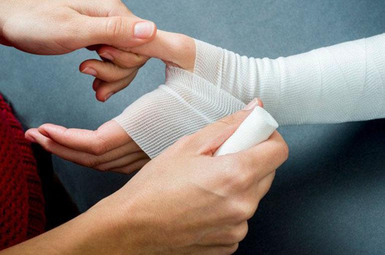 Cầm máu là bước đầu khi sơ cứu xử lý gãy xương