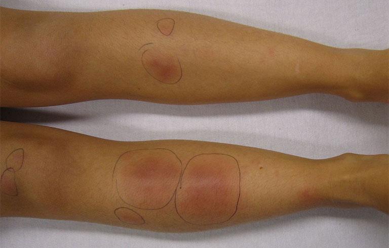 Các dấu hiệu ngoài da thường tự biến mất sau vài ngày