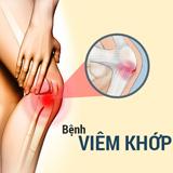 Liệu trình điều trị Viêm đau khớp