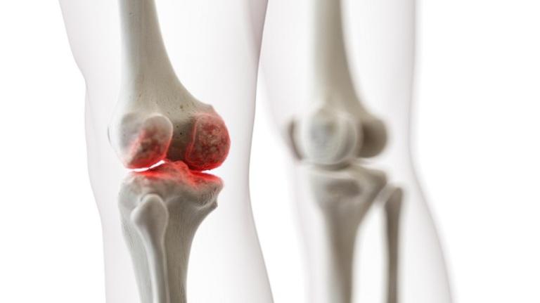 Những bệnh lý xương khớp ở đầu gối là nguyên nhân khá phổ biến
