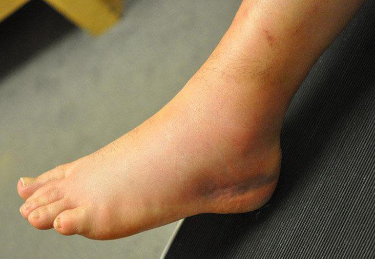 Bong gân là tình trạng tổn thương dây chằng giữ khớp