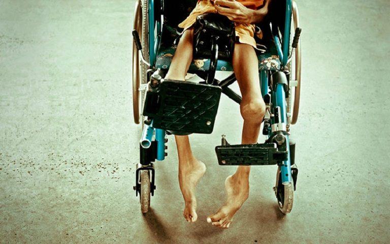 Bại liệt suốt đời là biến chứng nghiêm trọng nhất mà người bị viêm đa khớp có thể mắc phải