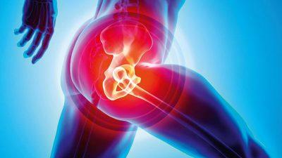 Đau khớp háng sau sinh có sao không? Nguyên nhân và cách điều trị