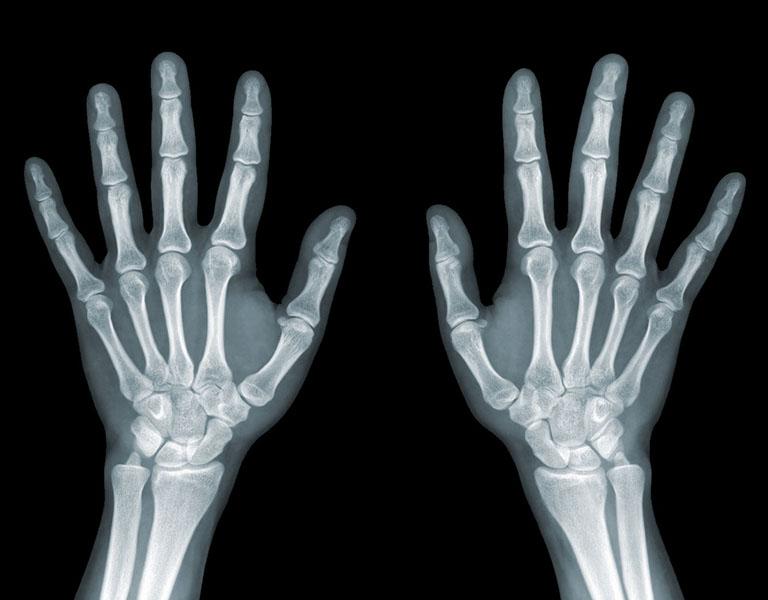 Chụp X-Quang là phương pháp chẩn đoán phổ biến bệnh đau khớp ngón tay