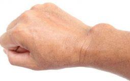 Viêm bao hoạt dịch khớp cổ tay: Dấu hiệu và cách điều trị hiệu quả