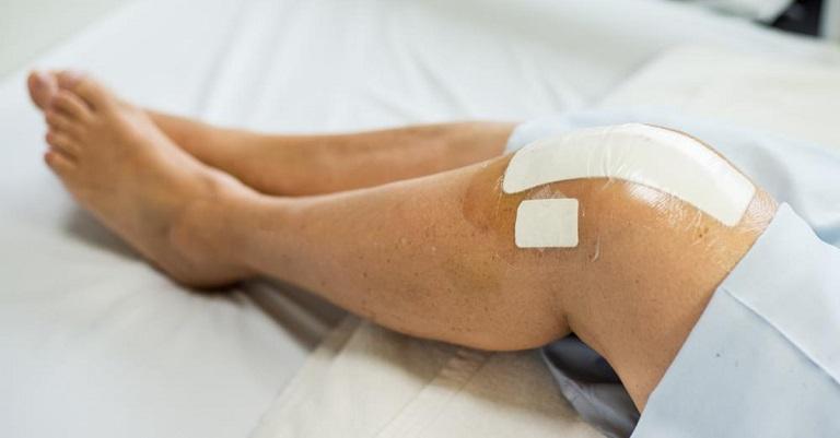 Chấn thương vùng đầu gối nếu không xử lý đúng cách có thể gây viêm màng bao hoạt dịch khớp gối