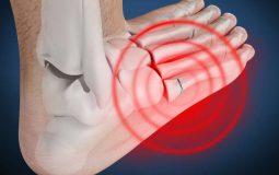 Bệnh viêm khớp bàn chân: Hình ảnh, dấu hiệu và hướng điều trị hiệu quả