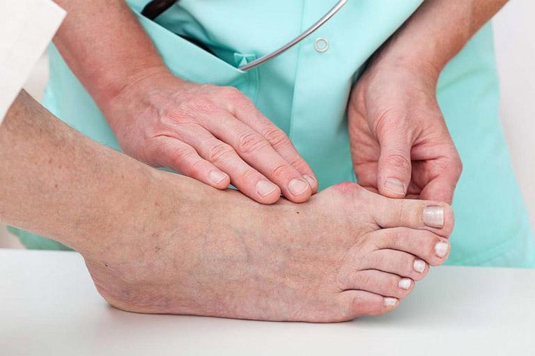 Cần thăm khám tại các cơ sở y tế để chẩn đoán bệnh