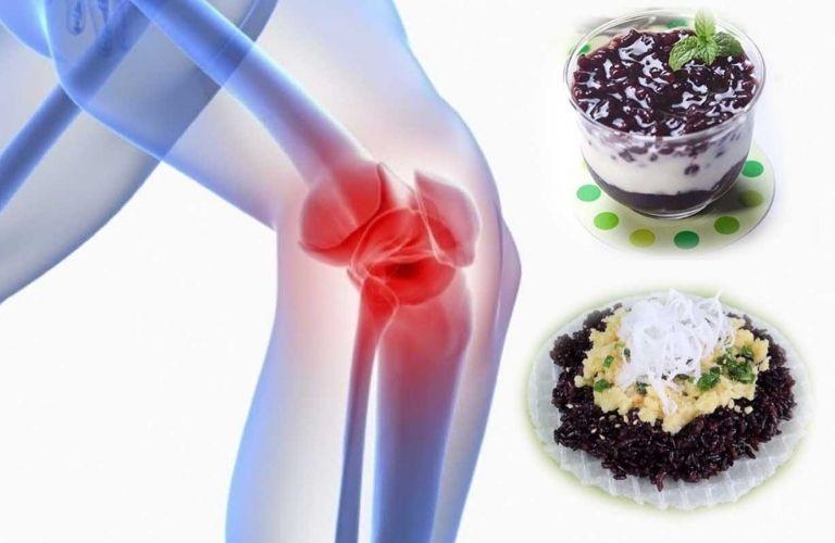 Nếp cẩm có thể chữa được nhiều bệnh trong đó có bệnh xương khớp