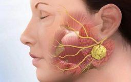 Cách điều trị viêm khớp thái dương hàm hiệu quả, đẩy lùi bệnh nhanh chóng
