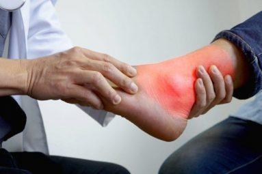 Sưng khớp cổ chân là bệnh gì? Nguyên nhân và cách điều trị