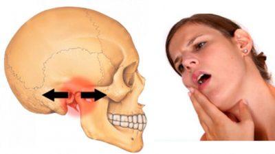 Đau khớp hàm khi há miệng hoặc nhai là bệnh gì? Cách xử lý triệt để?