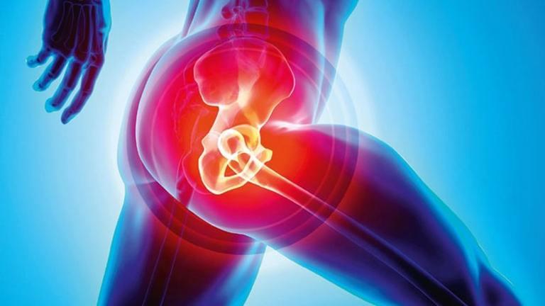 Trường hợp khớp háng bị đau với cường độ mạnh, người bệnh nên tham khảo ý kiến bác sĩ trước khi tập luyện