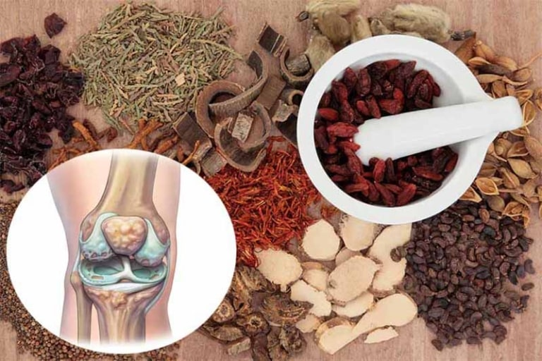 Bài thuốc Xương khớp Đỗ Minh đã tồn tại từ lâu đời và nổi tiếng trong làng YHCT