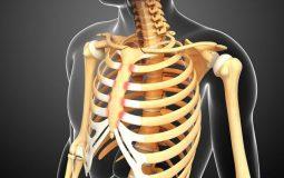 Viêm khớp sụn sườn là gì? Dấu hiệu bệnh và cách điều trị
