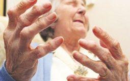 Viêm khớp dạng thấp huyết thanh dương tính: Thông tin từ A-Z