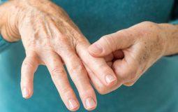 Bệnh viêm khớp dạng thấp có chữa khỏi không? Phác đồ điều trị viêm khớp dạng thấp